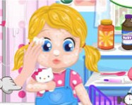 Barbies baby allergy online